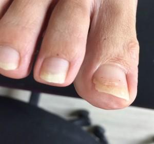 巻爪親指②
